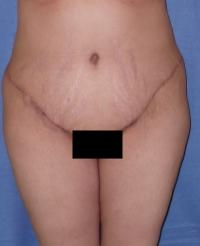 Body Contouring Case 102 - Tummy Tuck