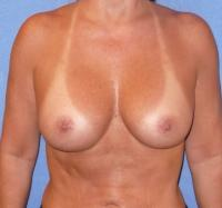 Breast Surgery Case 106 - Breast Augmentation