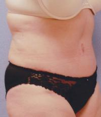 Body Contouring Case 119 - Tummy Tuck