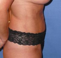 Body Contouring Case 121 - Liposuction