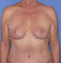 Breast Surgery Case 124 - Breast Reduction