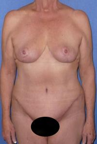 Body Contouring Case 125 - Tummy Tuck