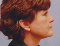 Facial Surgery Case 126 - Blepharoplasty