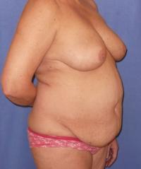 Body Contouring Case 141 - Tummy Tuck