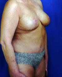 Breast Surgery Case 151 - Breast Lift