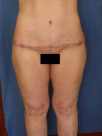 Body Contouring Case 181 - Tummy Tuck