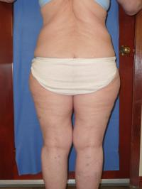 Body Contouring Case 191 - Thigh Lift, Thighs