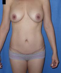 Body Contouring Case 241 - Tummy Tuck