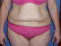 Body Contouring Case 321 - Tummy Tuck