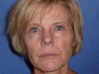 Facial Surgery Case 361 - Fat Grafting