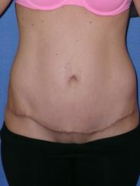 Body Contouring Case 411 - Tummy Tuck