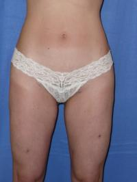 Body Contouring Case 421 - Liposuction, Thighs