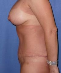 Body Contouring Case 441 - Tummy Tuck