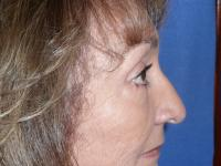 Facial Surgery Case 491 - Blepharoplasty