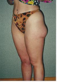 Body Contouring Case 551 - Liposuction