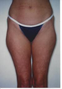 Body Contouring Case 561 - Liposuction, Thighs