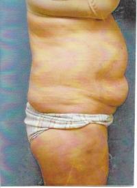 Body Contouring Case 571 - Tummy Tuck