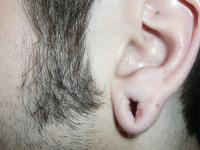 Facial Surgery Case 611 - Ear Surgery