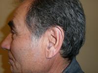 Facial Surgery Case 621 - Ear Surgery