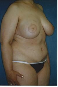 Breast Reconstruction Case 651 - TRAM Flap