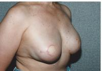 Breast Reconstruction Case 681 - TRAM Flap
