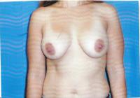 Breast Surgery Case 741 - Breast Augmentation
