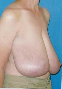 Breast Reconstruction Case 871 - Other