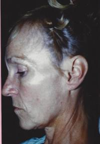 Facial Surgery Case 901 - Face Lift